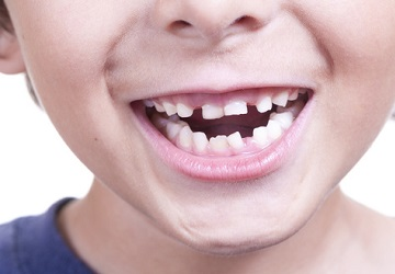 5 Countries With The Worst Oral Health