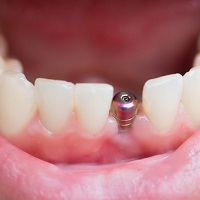 Weigh the Options of Dental Implants
