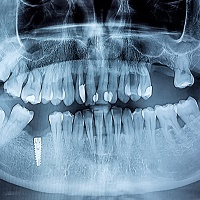 Study Suggests Bioceramics Could Fight Periodontitis